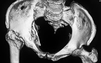 img-Acetabular Fracture