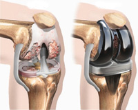 knee-replacement-1-1