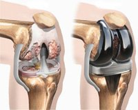 knee-replacement-1-1-1