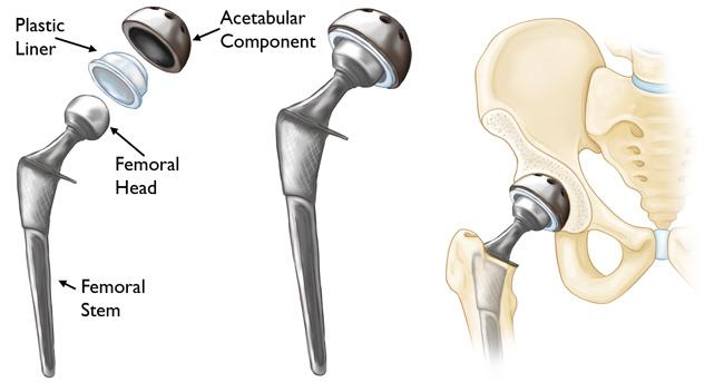 img-Hip Replacement