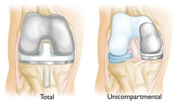 partial knee replacement